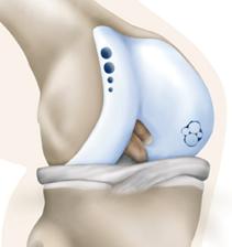 Χειρουργική θεραπεία χόνδρινων βλαβών